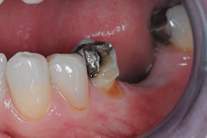 Amalgam replacement with crown before