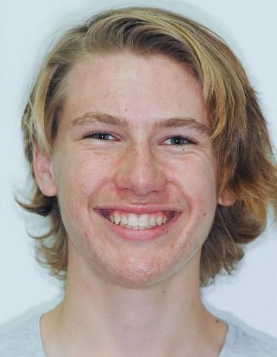 Orthodontics   Jacaranda Dental