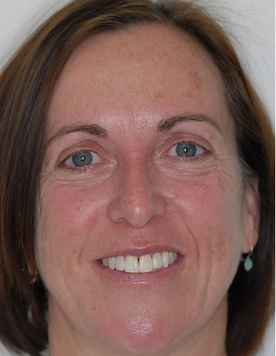 Orthodontics | Jacaranda Dental