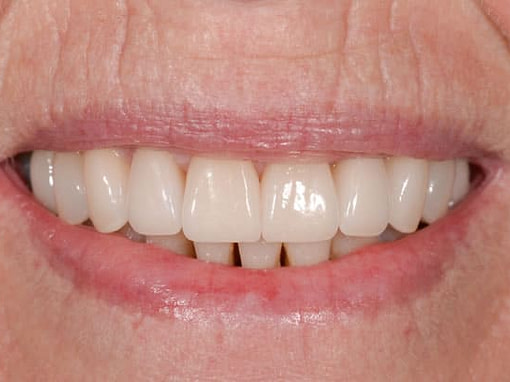 Cosmetic Dentistry   Jacaranda Dental