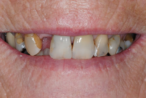 Cosmetic Dentistry | Jacaranda Dental