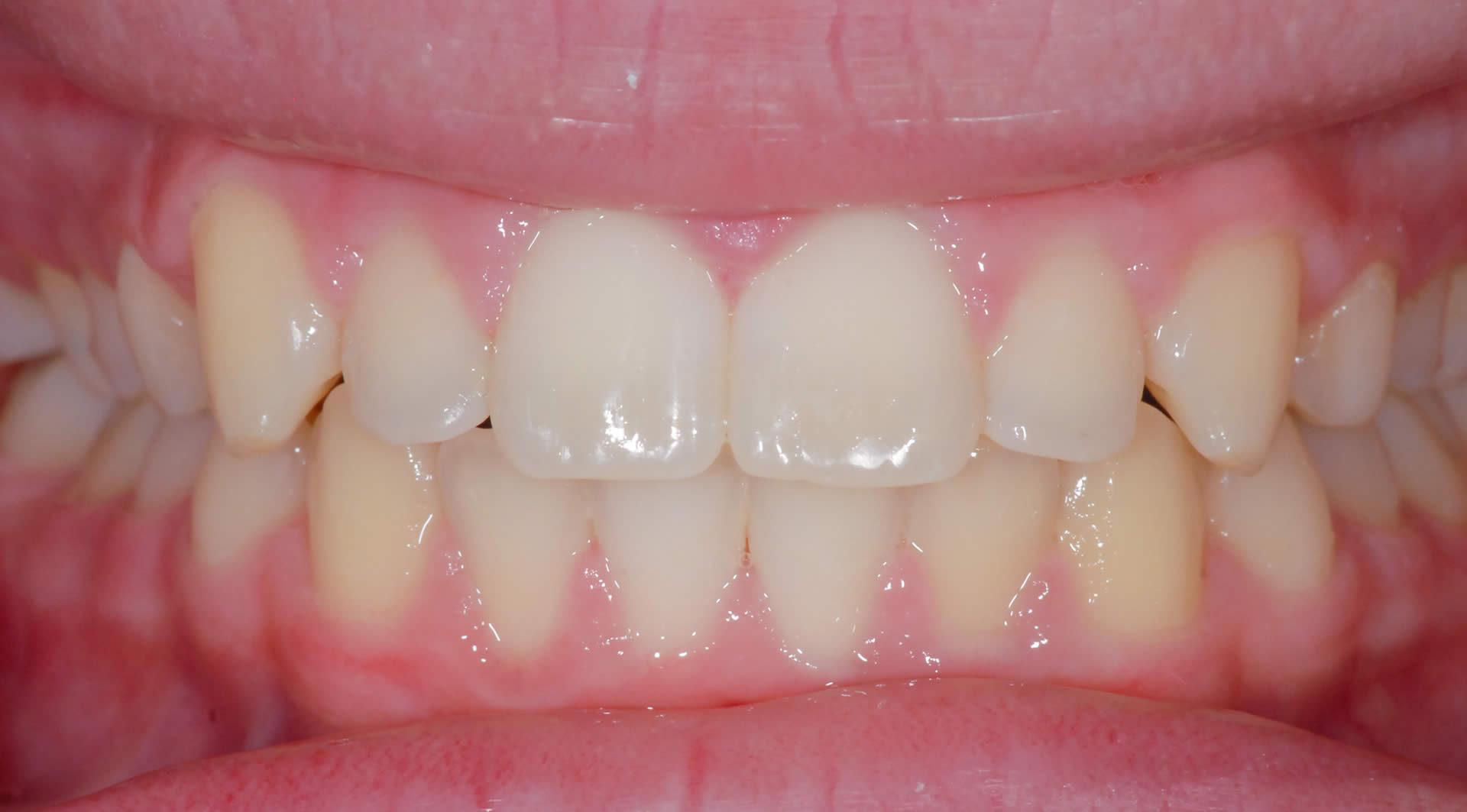 Braces - Orthodontics   Jacaranda Dental