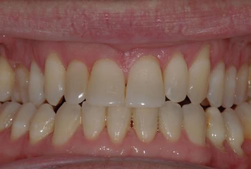 Braces - Fred   Jacaranda Dental