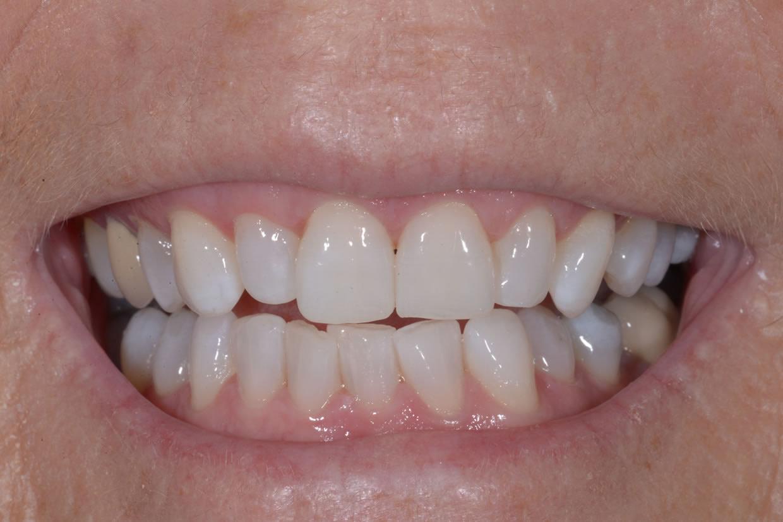 Teeth Whitening   Jacaranda Dental
