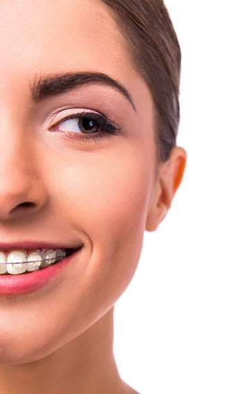 Orthodontics | Jacaranda Dental