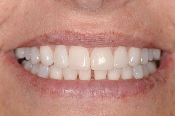 Bite Reconstuction - Sue | Jacaranda Dental