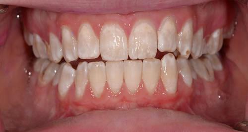 Airflow, Dental Hygiene Angela   Jacaranda Dental