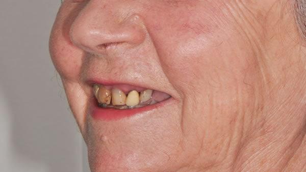Dental Implants - Sue | Jacaranda Dental