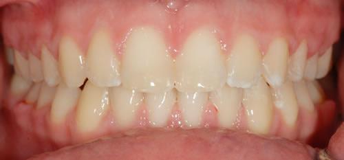 Fixed Braces - Sophie   Jacaranda Dental