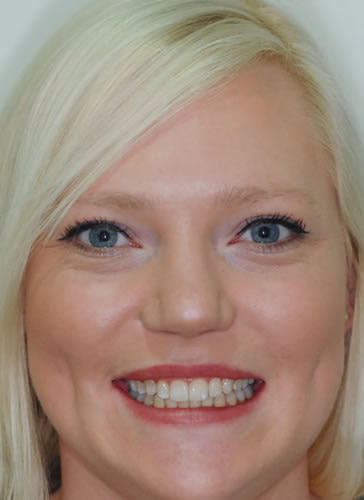 New Patients | Jacaranda Dental
