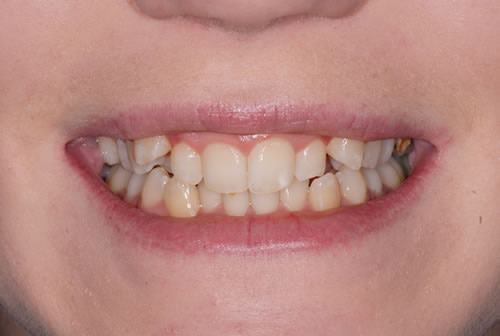 Invisalign - Kristy | Jacaranda Dental