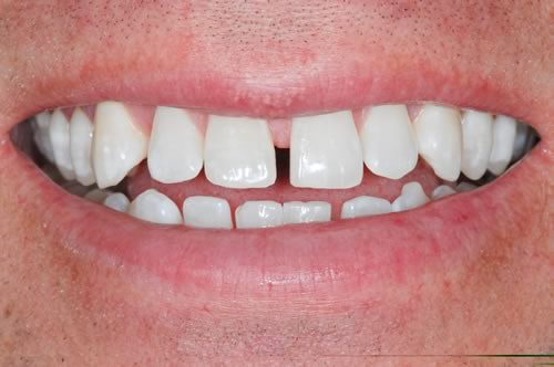Teeth Whitening | Jacaranda Dental