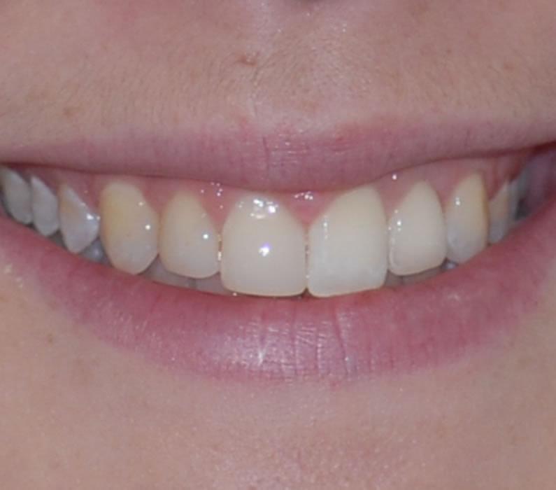 Tooth Implant - Sally | Jacaranda Dental