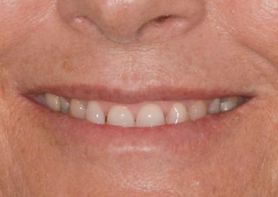 Dental Treatments | Jacaranda Dental