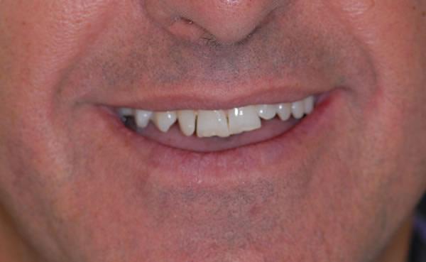Services   Jacaranda Dental