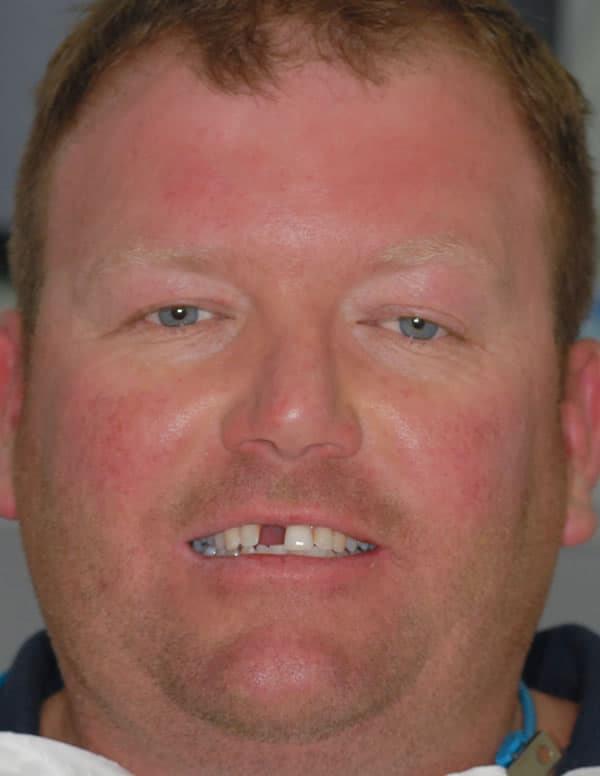 Dental Implants | Jacaranda Dental