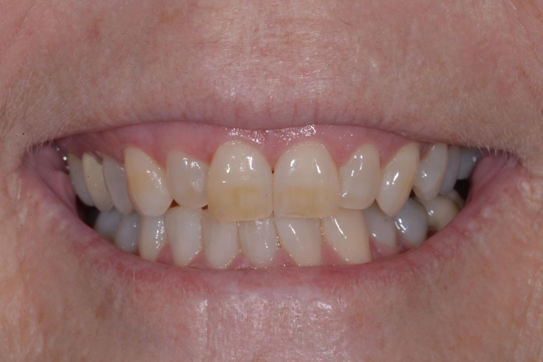 Teeth Whitening | Jacaranda Dental
