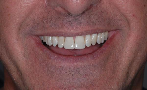 Braces - Orthodontics | Jacaranda Dental