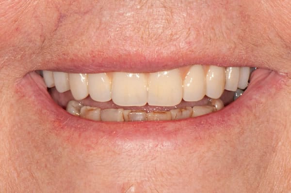 Dental Implants - Sue | Jacaranda Dental