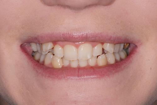 Before and Afters | Jacaranda Dental