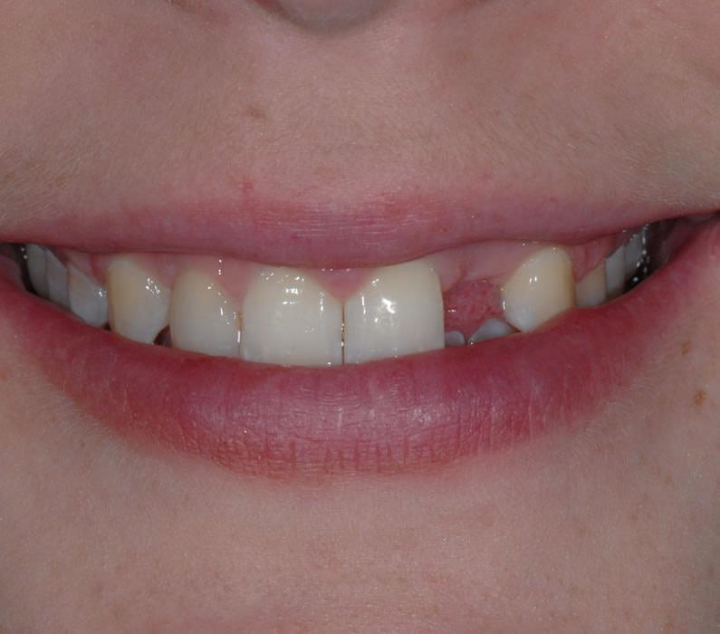 Tooth Implant - Sally   Jacaranda Dental